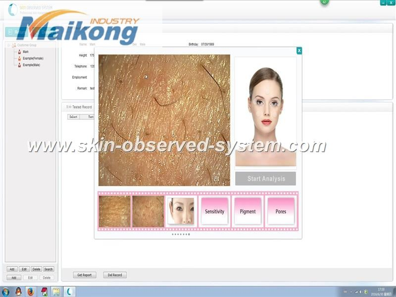 how to use the Skin Observed System (6)