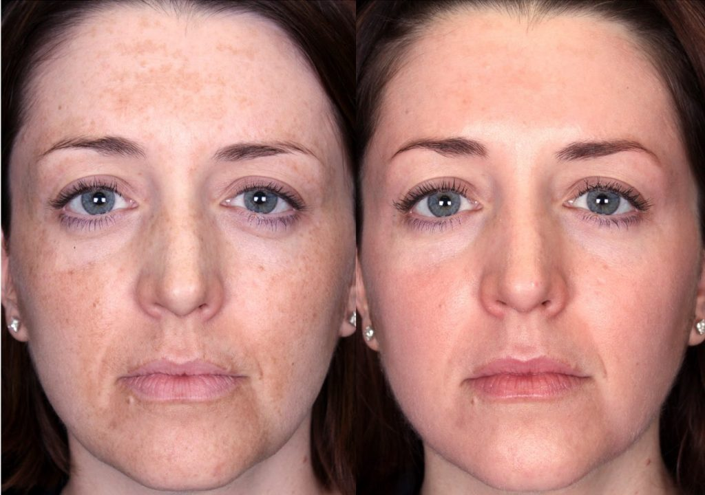 Our independent report on Chemical Peels