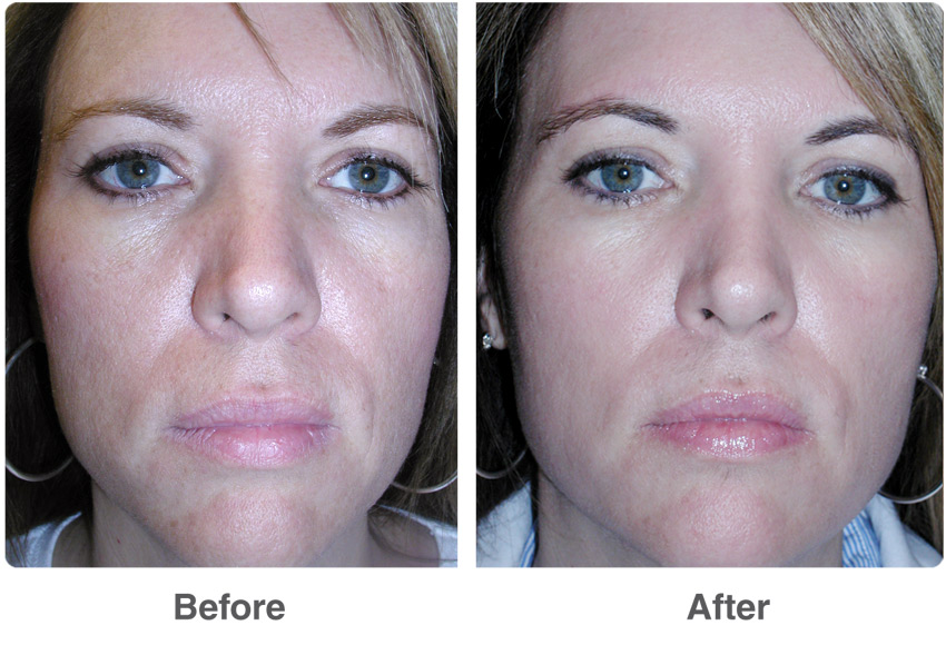 Chemical Peels & Skin Peels Treatments remove dead skin cells, and remove fine lines!