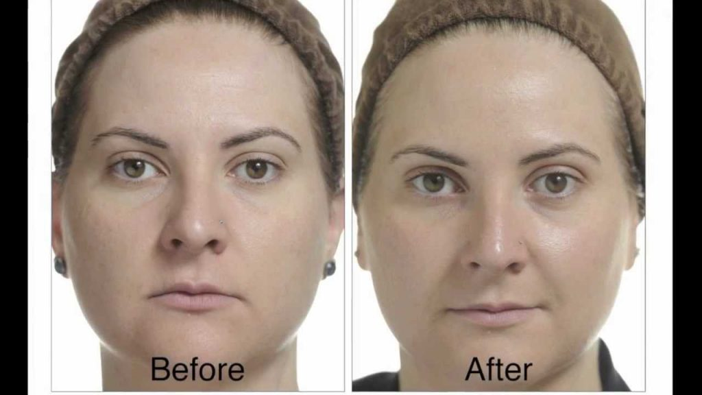 What happens after a chemical peel