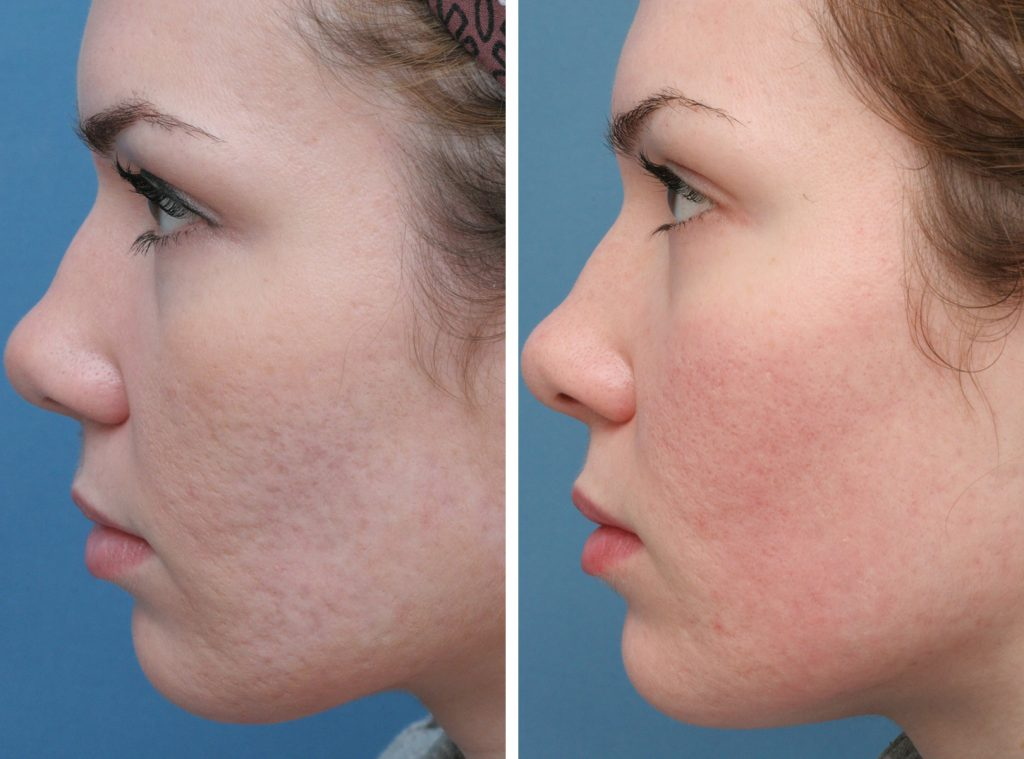 acne-scars-before-after-2
