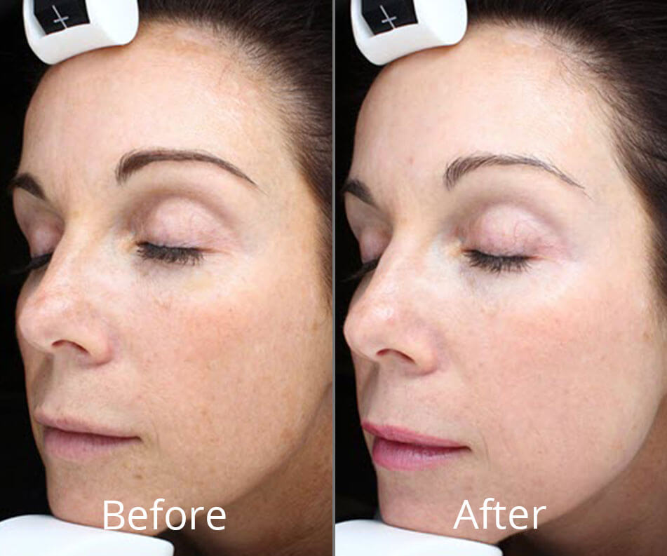 before-after-halo-fractional-laser-morgantown-west-virginia-willow-medspa-full-1