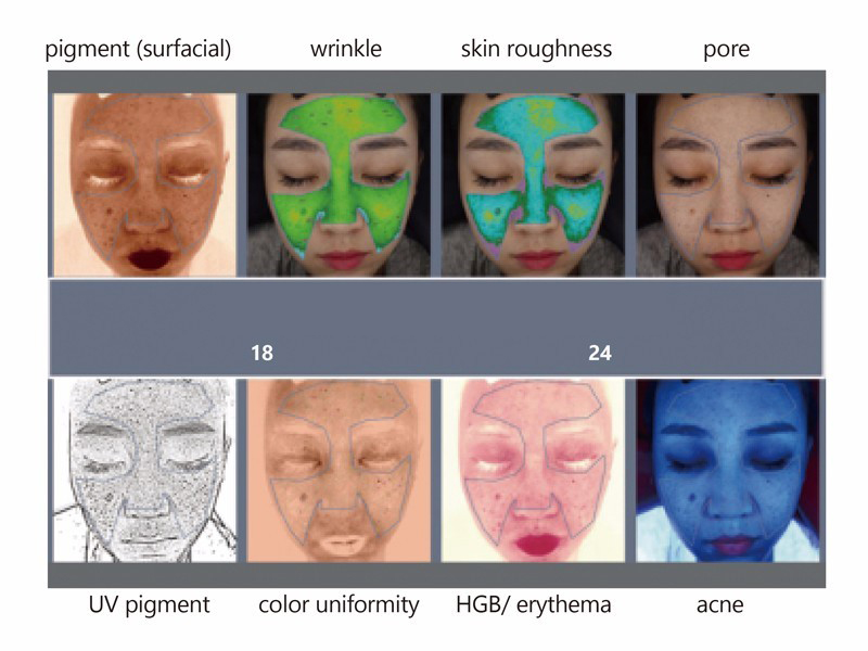 7 point skin analysis